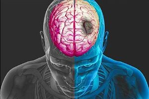 Геморрагический инсульт: причини виникнення та основні симптоми, способи лікування захворювання