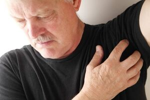 Гидраденит: причини виникнення та основні симптоми, способи лікування захворювання
