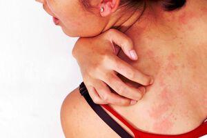 Крапивница: причины возникновения и основные симптомы, способы лечения заболевания