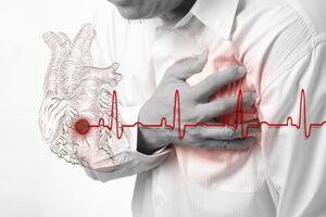 Инфаркт миокарда: причины возникновения и основные симптомы, способы лечения заболевания