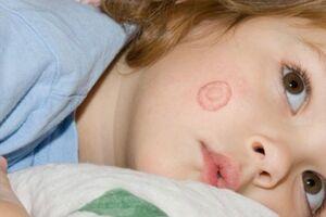 Лишай: причины возникновения и основные симптомы, способы лечения заболевания