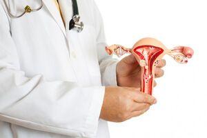 Миома матки: причини виникнення та основні симптоми, способи лікування захворювання