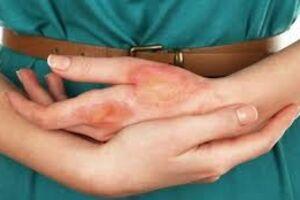 Нейродермит: причини виникнення та основні симптоми, способи лікування захворювання