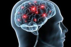 Рассеянный склероз: причини виникнення та основні симптоми, способи лікування захворювання