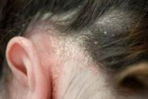 Себорея: причини виникнення та основні симптоми, способи лікування захворювання