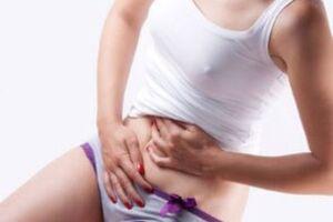 Тератома яичника: причини виникнення та основні симптоми, способи лікування захворювання