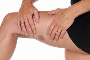 Тромбоцитопения: причини виникнення та основні симптоми, способи лікування захворювання