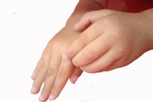 Чесотка: причины возникновения и основные симптомы, способы лечения заболевания