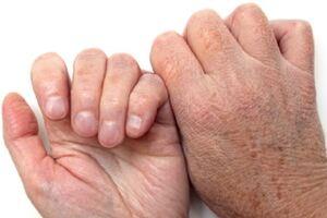 Ксероз кожи: причины возникновения и основные симптомы, способы лечения заболевания