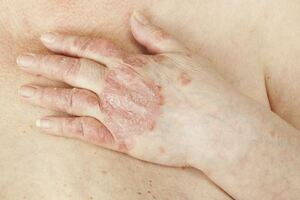 Парапсориаз: причины возникновения и основные симптомы, способы лечения заболевания