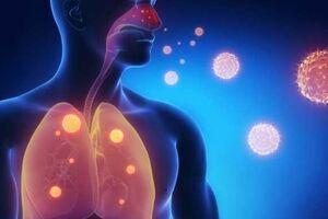 Болезнь легионеров: причины возникновения и основные симптомы, способы лечения заболевания