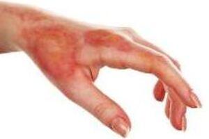 Химический ожог: причины возникновения и основные симптомы, способы лечения заболевания