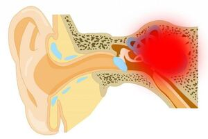 Лабиринтит: причины возникновения и основные симптомы, способы лечения заболевания