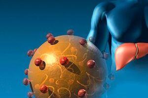 Аутоиммунный гепатит: причины возникновения и основные симптомы, способы лечения заболевания