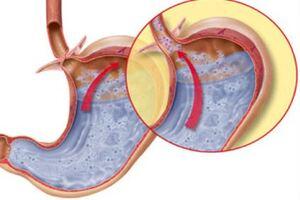 Гастроэзофагеальный рефлюкс: причини виникнення та основні симптоми, способи лікування захворювання