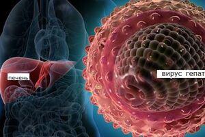 Острый вирусный гепатит: причини виникнення та основні симптоми, способи лікування захворювання