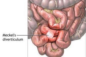 Меккелев дивертикул: причини виникнення та основні симптоми, способи лікування захворювання