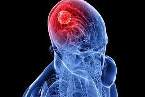 Менингиома: причины возникновения и основные симптомы, способы лечения заболевания