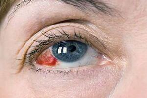 Гемофтальм: причины возникновения и основные симптомы, способы лечения заболевания
