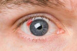 Диабетическая ретинопатия: причины возникновения и основные симптомы, способы лечения заболевания