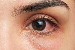 Кератит: причины возникновения и основные симптомы, способы лечения заболевания