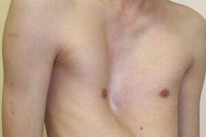 Деформация грудной клетки: причини виникнення та основні симптоми, способи лікування захворювання