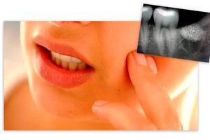 Альвеолит: причины возникновения и основные симптомы, способы лечения заболевания