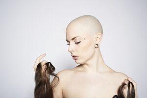 Выпадение волос: причини виникнення та основні симптоми, способи лікування захворювання