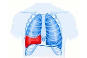 Гемоторакс: причини виникнення та основні симптоми, способи лікування захворювання