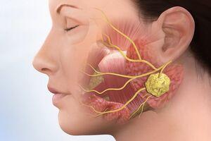 Воспаление слюнных желез (сиалоаденит): причины возникновения и основные симптомы, способы лечения заболевания