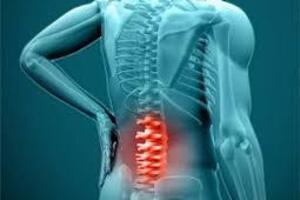 Радикулит: причины возникновения и основные симптомы, способы лечения заболевания
