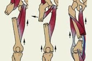 Перелом бедренной кости: причины возникновения и основные симптомы, способы лечения заболевания