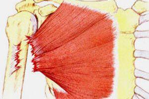 Разрыв мышцы: причины возникновения и основные симптомы, способы лечения заболевания