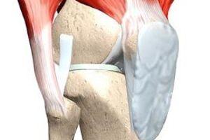 Контрактура сустава: причины возникновения и основные симптомы, способы лечения заболевания