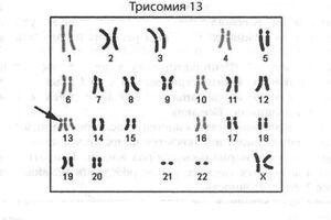 Трисомия 13: причины возникновения и основные симптомы, способы лечения заболевания