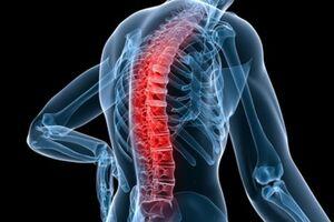 Спондилит: причины возникновения и основные симптомы, способы лечения заболевания