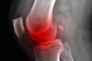 Остеомиелит: причини виникнення та основні симптоми, способи лікування захворювання