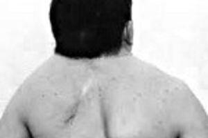 Синдром Клиппеля-Фейля: причини виникнення та основні симптоми, способи лікування захворювання