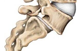 Спондилолиз: причини виникнення та основні симптоми, способи лікування захворювання