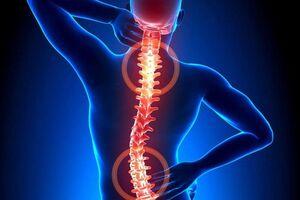 Травмы позвоночника: причины возникновения и основные симптомы, способы лечения заболевания
