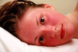 Гиперемия: причины возникновения и основные симптомы, способы лечения заболевания