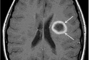 Абсцесс головного мозга: причини виникнення та основні симптоми, способи лікування захворювання