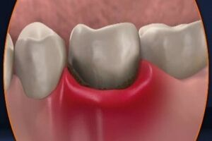 Абсцесс зуба: причины возникновения и основные симптомы, способы лечения заболевания