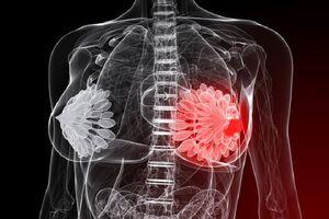 Абсцесс молочной железы: причины возникновения и основные симптомы, способы лечения заболевания