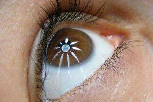 Акантамебный кератит: причины возникновения и основные симптомы, способы лечения заболевания