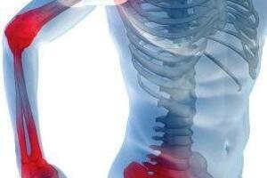 Полимиозит: причины возникновения и основные симптомы, способы лечения заболевания