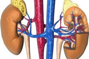 Гиперальдостеронизм: причины возникновения и основные симптомы, способы лечения заболевания