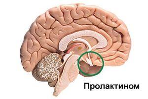 Пролактинома: причини виникнення та основні симптоми, способи лікування захворювання