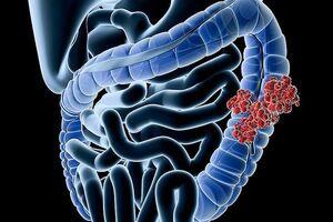 Аденокарцинома толстой кишки: причины возникновения и основные симптомы, способы лечения заболевания