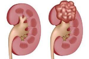 Аденокарцинома почки: причины возникновения и основные симптомы, способы лечения заболевания